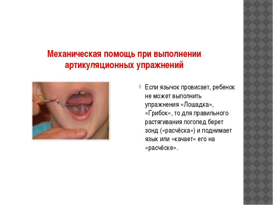 Подрезание уздечки языка у новорожденных: что делать с короткой уздечкой