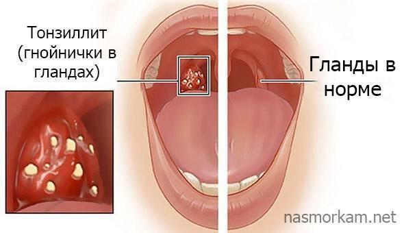 Покраснение горла у детей: выявление причин и устранение симптомов