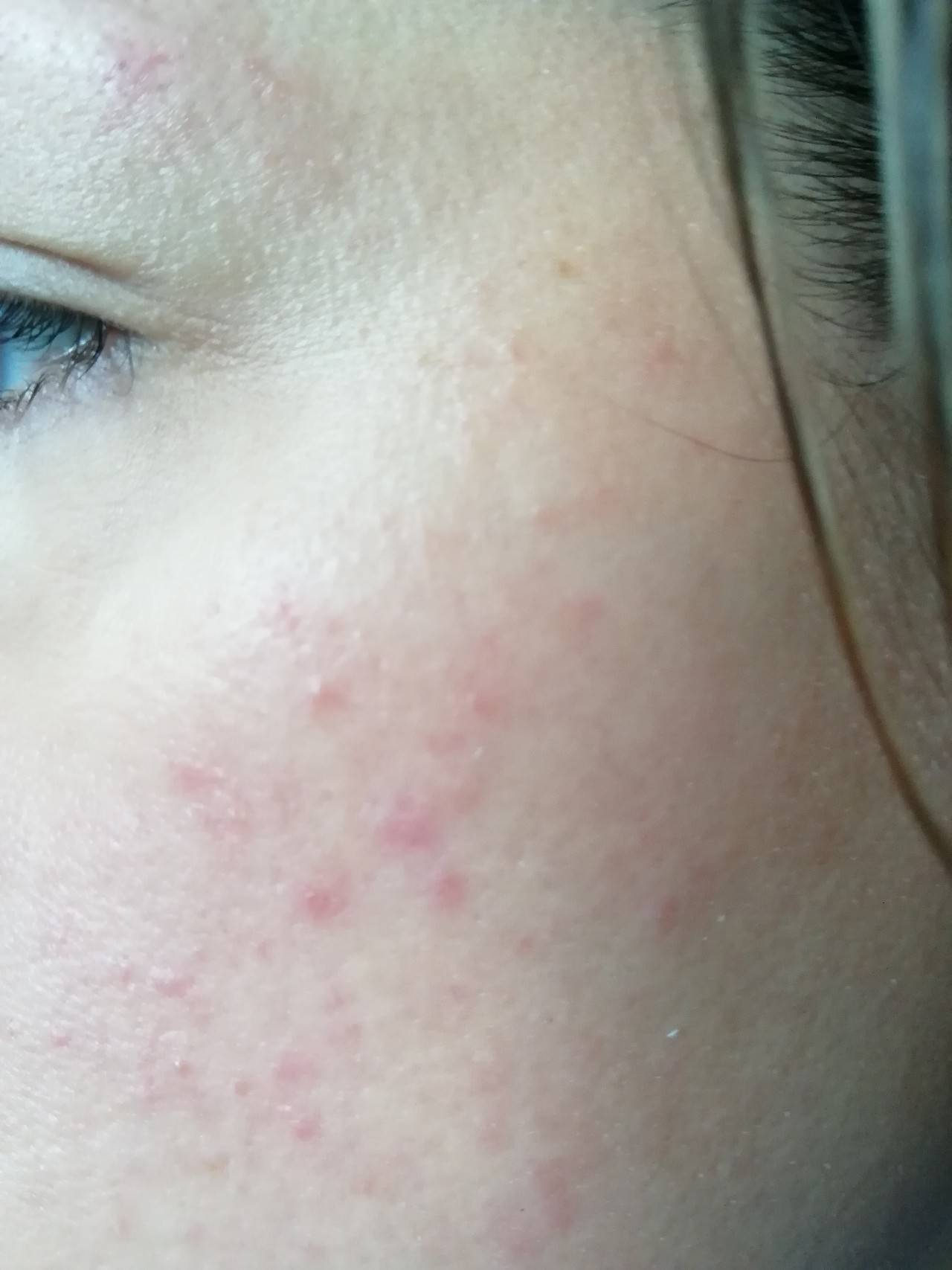 Сыпь на лице в виде мелких прыщиков у грудничка