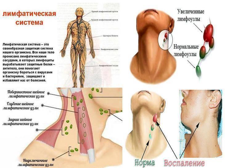 Причины воспаления лимфоузлов на шее у детей и взрослых: симптомы