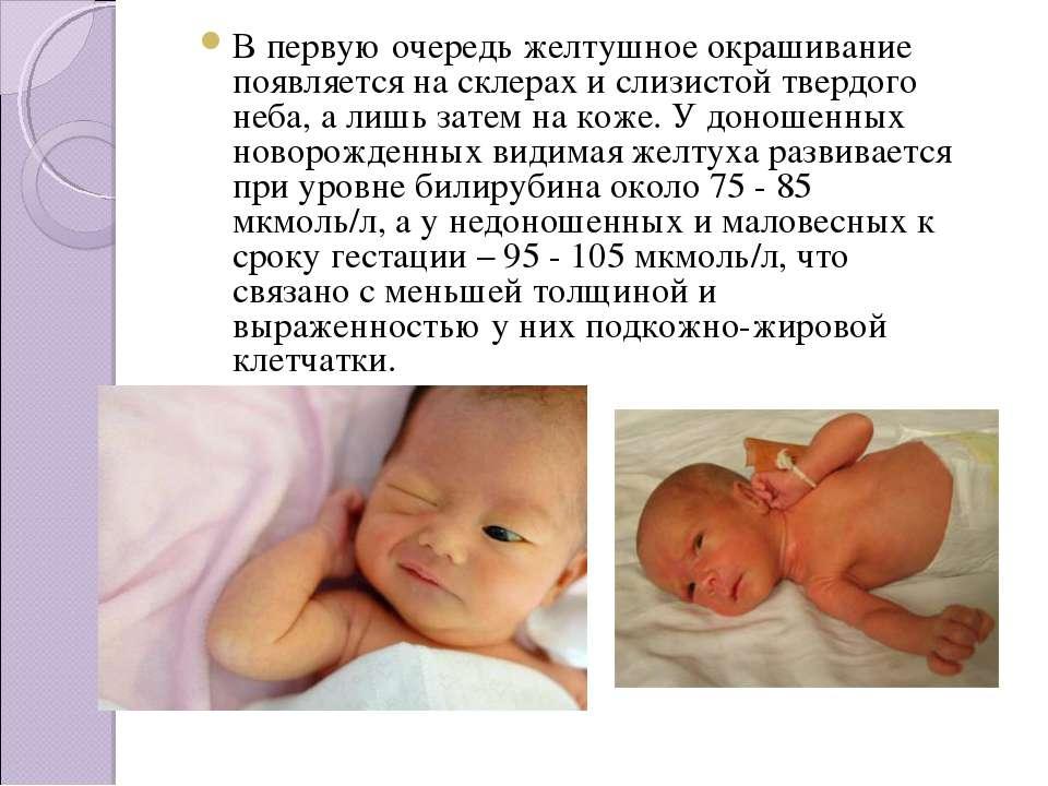 Сгущение крови у новорожденных - симптомы и лечение болезней