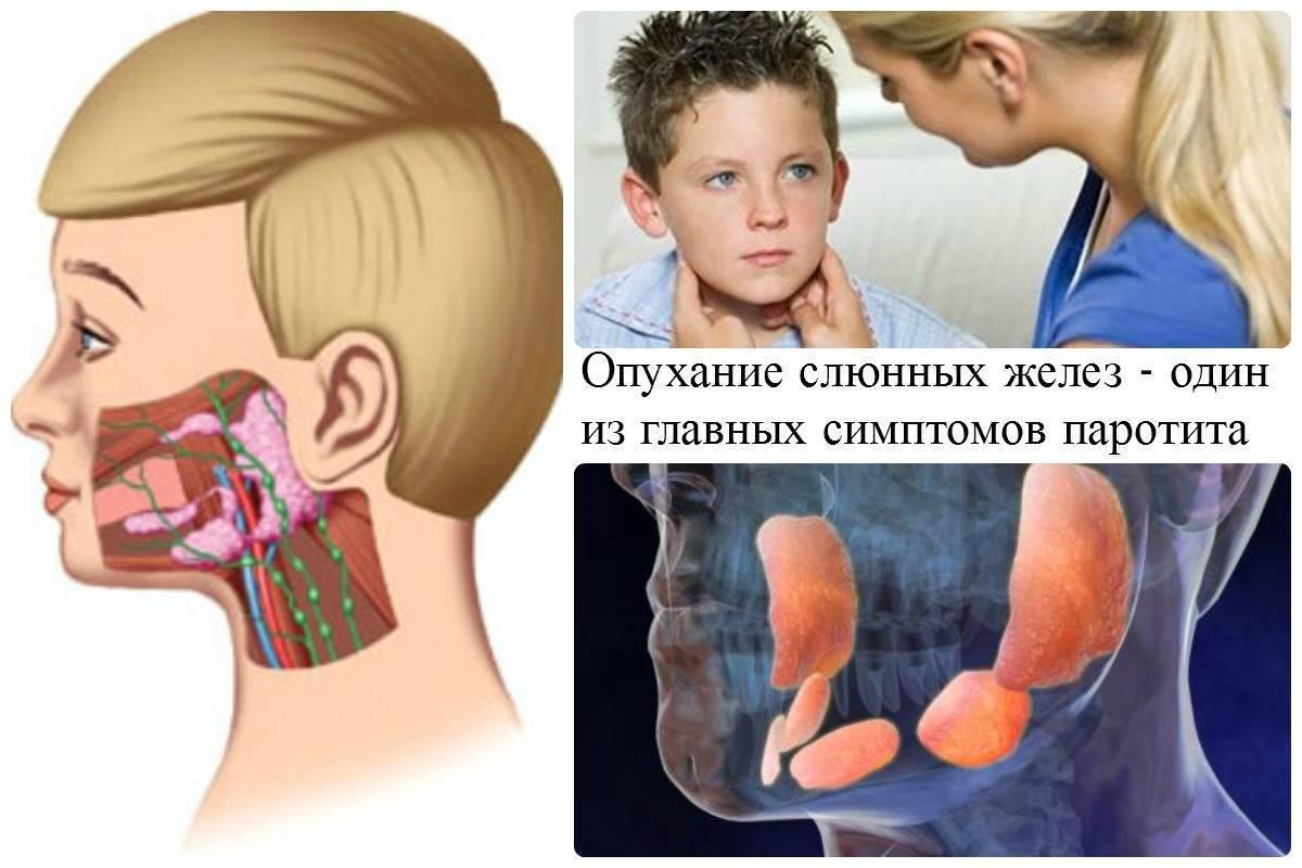 Эпидемический паротит: симптомы, лечение, осложнения и профилактика