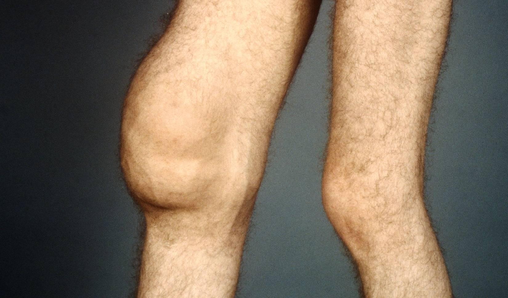 Артрит у детей: симптомы и лечение, причины возникновения воспаления у ребенка