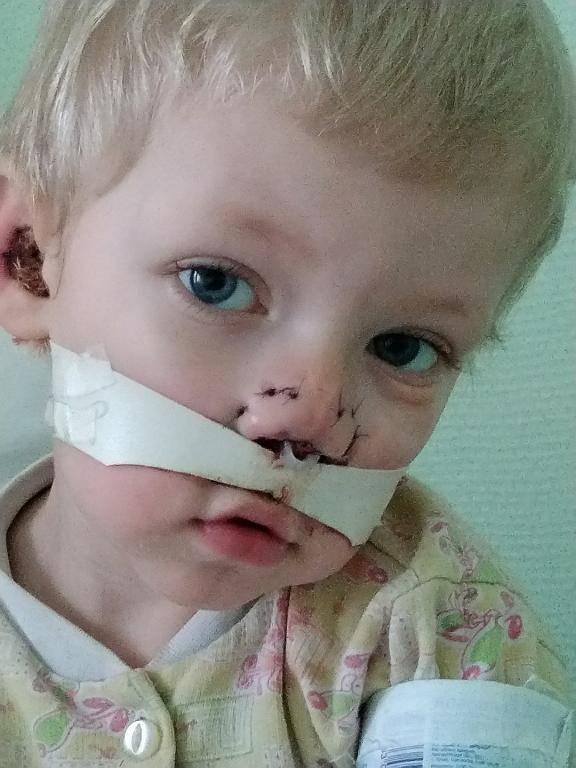 Признаки и симптомы перелома носа у ребенка: как определить наличие травмы после падения? ребенок сломал нос. что делать родителям