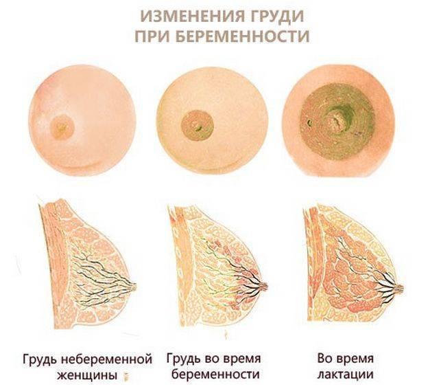 Грудь при беременности: когда начинает и перестает болеть / mama66.ru