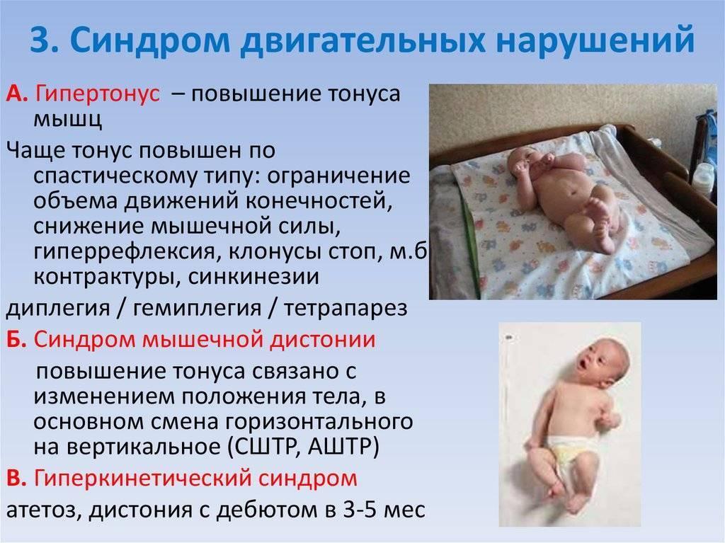 Ппцнс у новорожденных что это - моя крошка