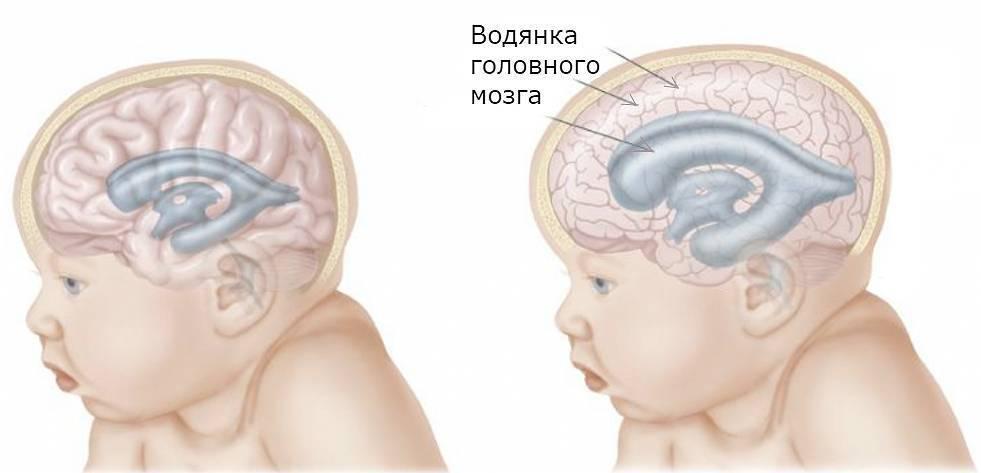 Органическое поражение мозга ребенка симптомы