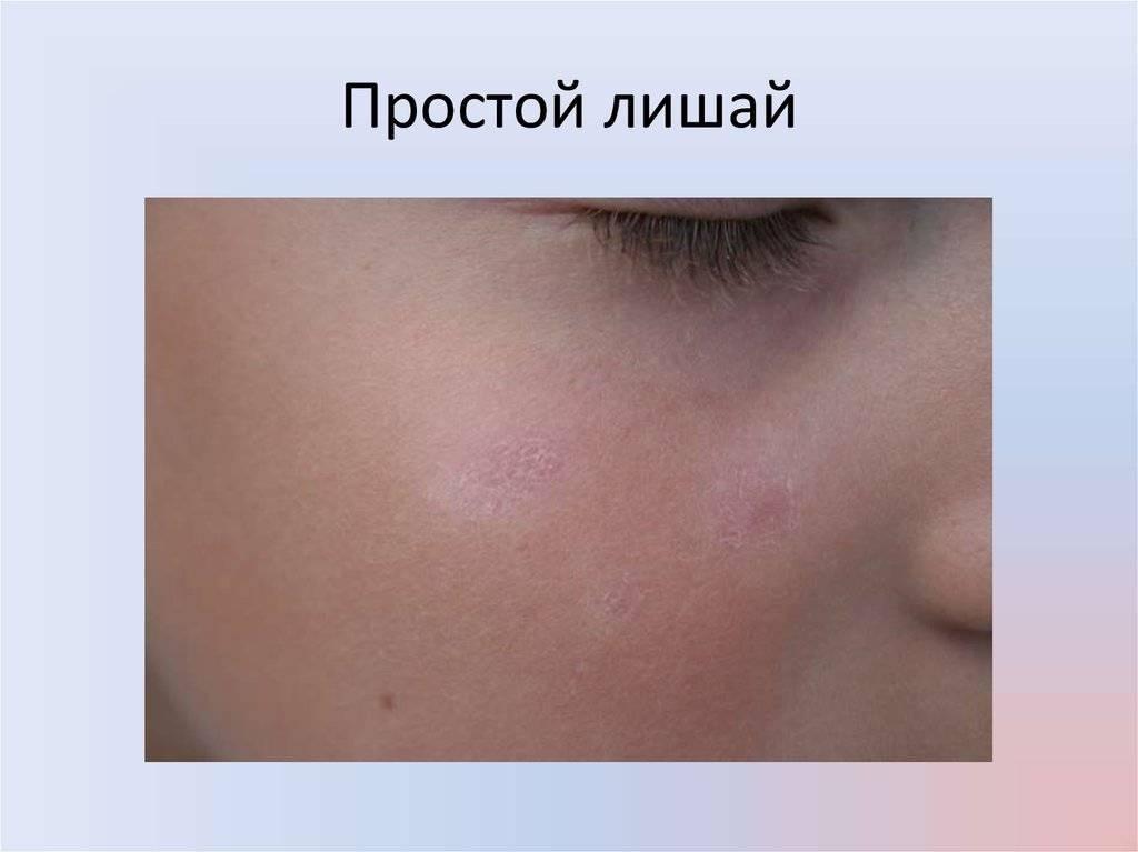 Красный плоский лишай: фото (10 шт) с описанием, лечение, симптомы и причины