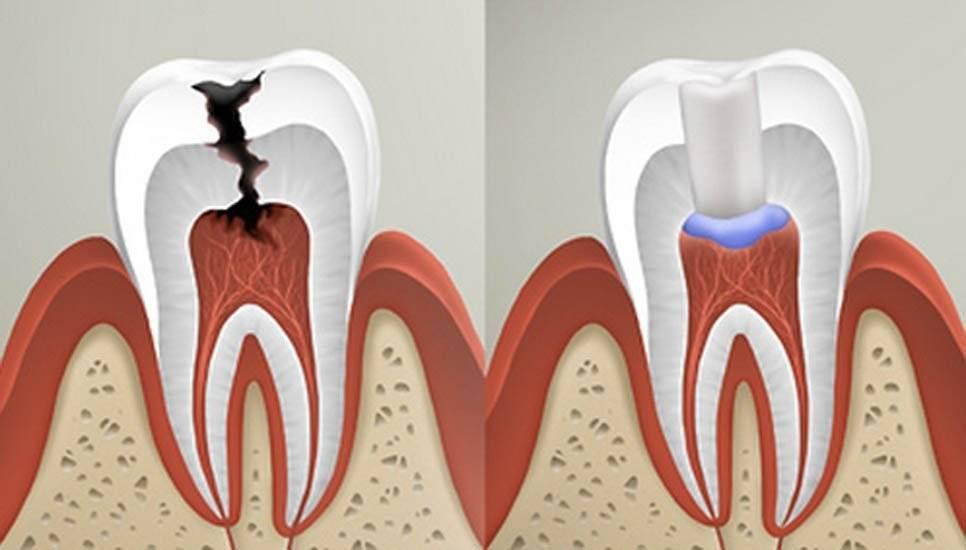 Пульпит молочного зуба у детей: лечение, осложнения и др аспекты + фото