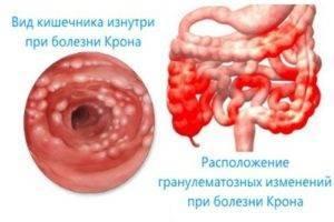 Энтероколит: симптомы и лечение у детей, как лечить острый инфекционный колит кишечника у ребенка