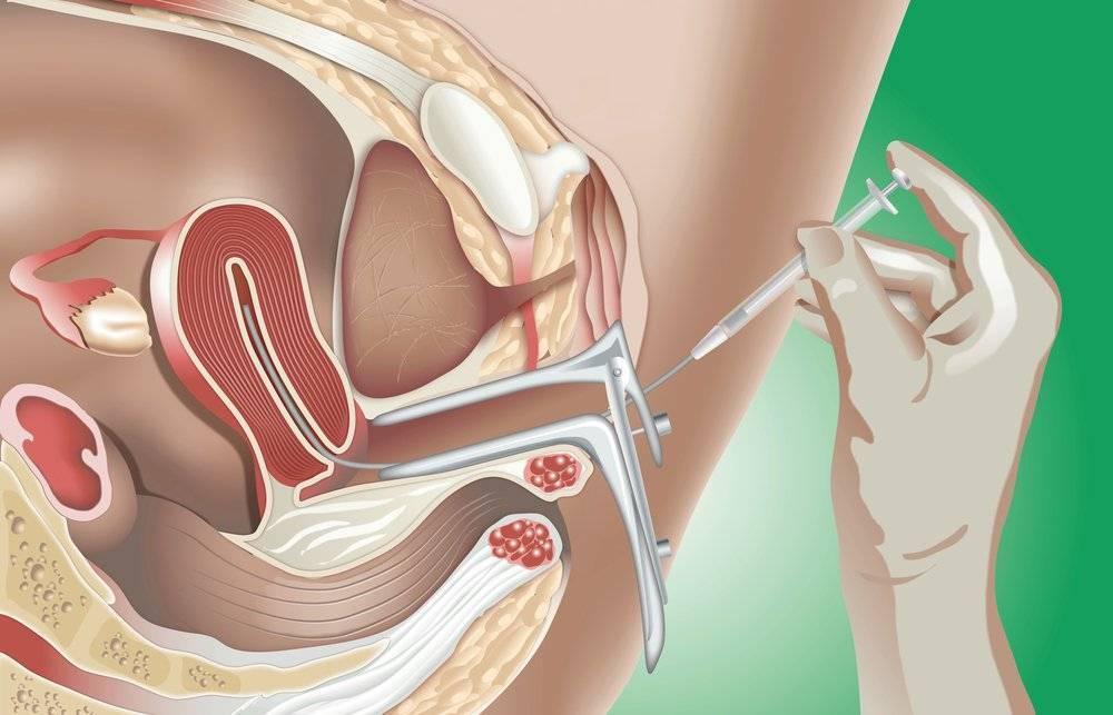 Лапароскопия и непроходимость маточных труб: какие отзывы о процедуре
