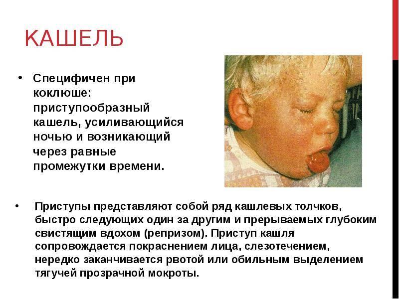 Причины и лечение кашля до рвоты у ребенка