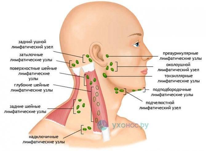 Воспаление затылочных лимфоузлов: причины и лечение