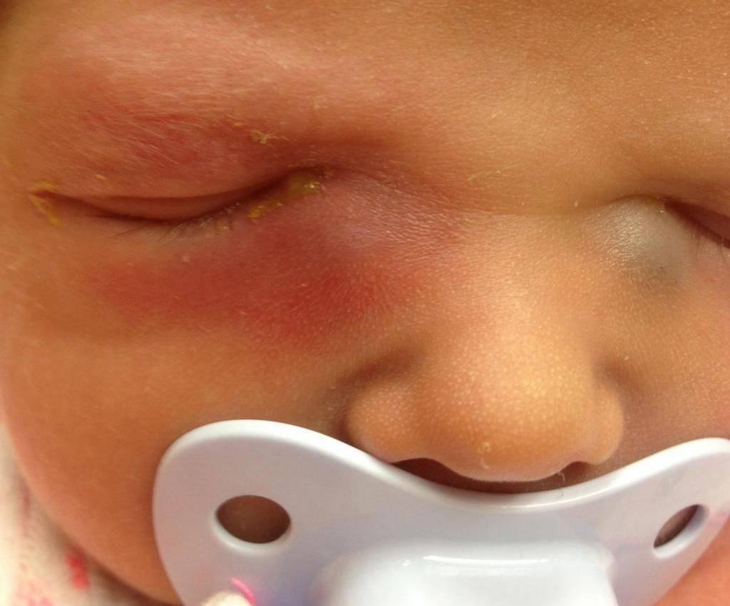 Дакриоцистит у новорожденных — топотушки