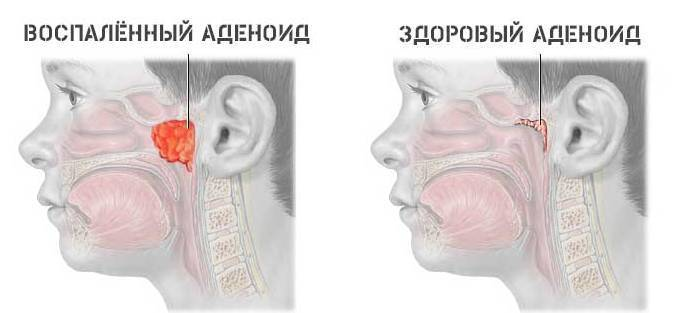 Что делать, если у ребенка нос заложен, а соплей нет? - горлонос.ру