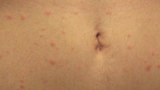 Аллергическая сыпь у детей фото и описание