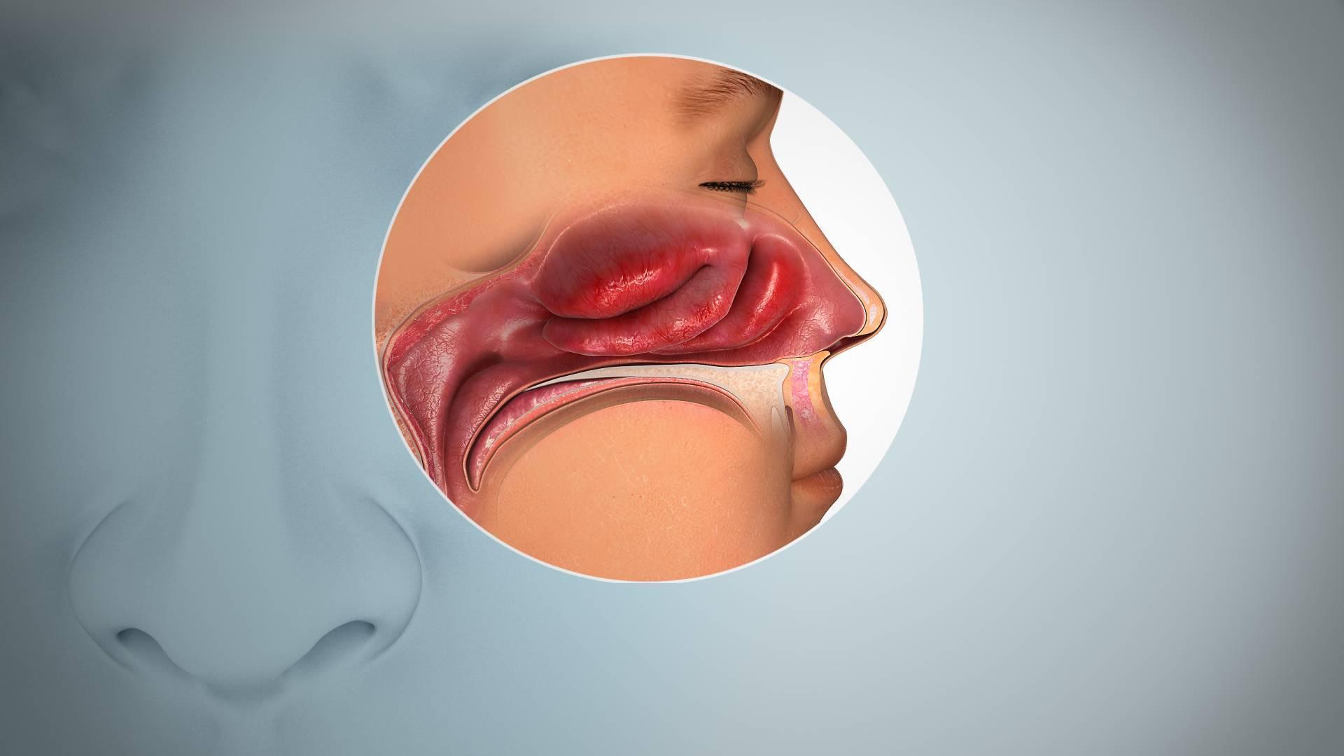 Как избавиться от отека слизистой носа у малыша?