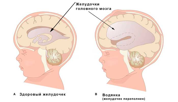 Гидроцефалия плода причины, симптомы, методы лечения и профилактики