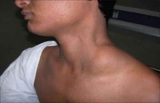 Лимфангиома: причины, формы и локализации, лечение, профилактика