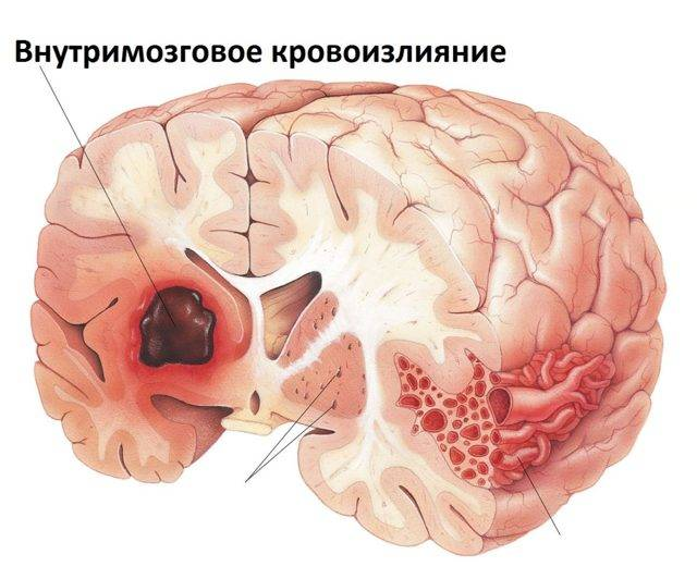 Кровоизлияние в мозг у новорожденных лечение последствия