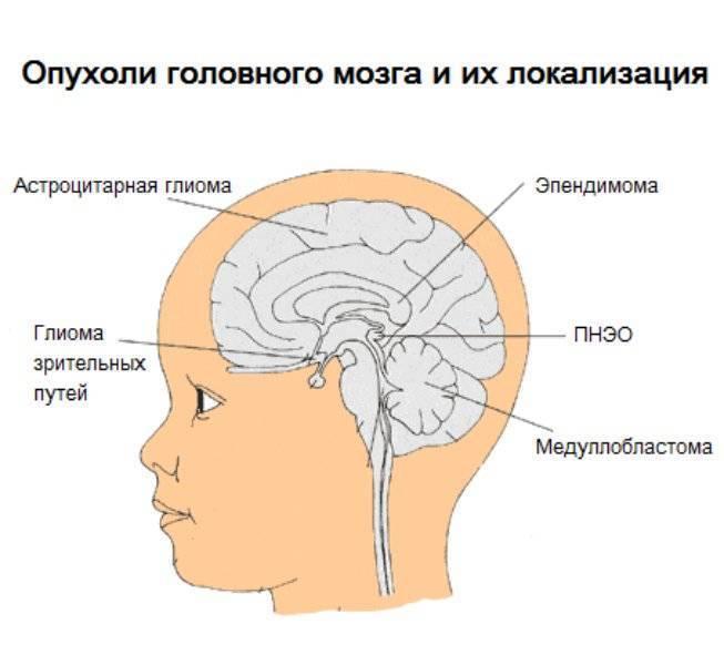 Глиома ствола мозга. последствия, фото и прогноз
