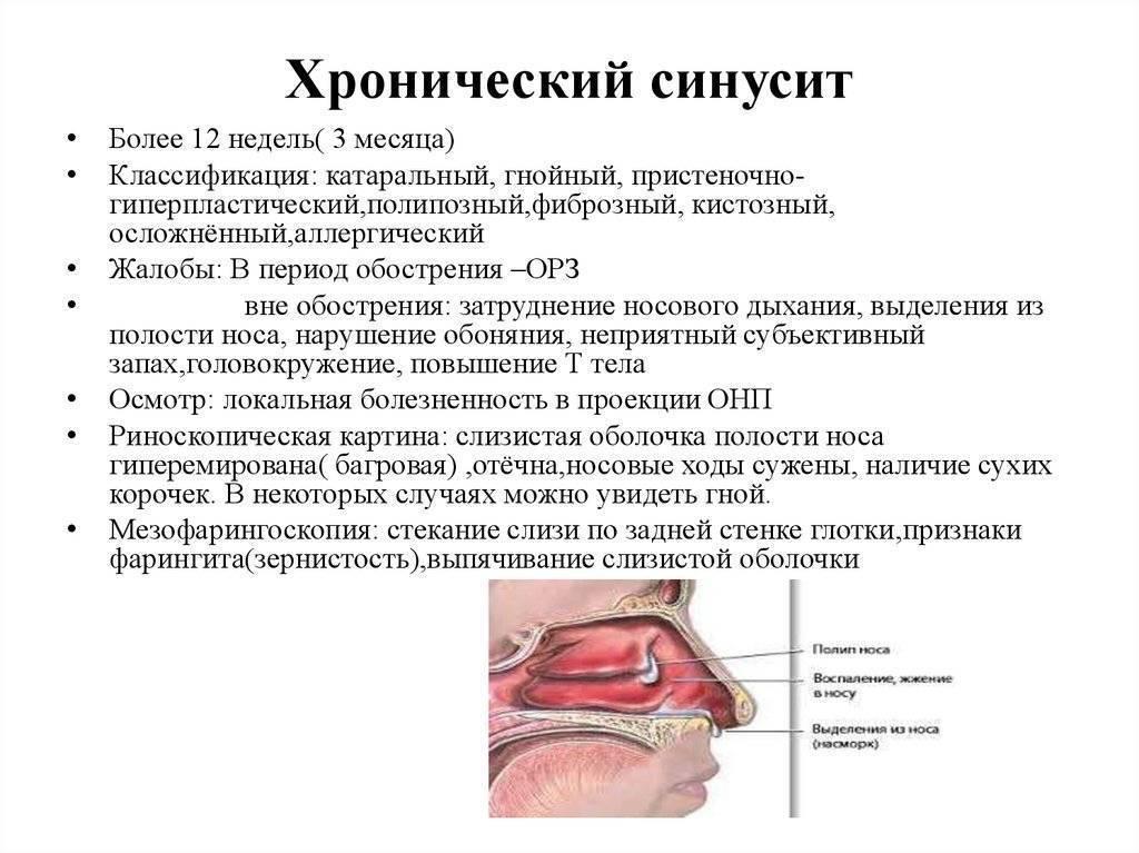 Синусит у детей: причины, симптомы, лечение частых синуситов у ребенка в домашних условиях