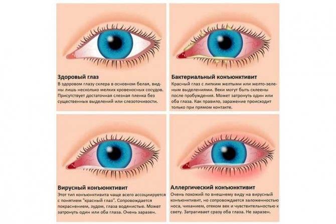 Почему болит глаз? сопутствующие симптомы и способы устранения проблемы