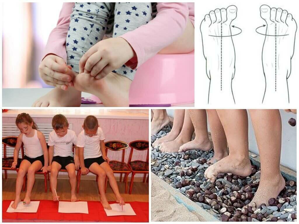 Вальгусная деформация стопы у детей: причины, степени, лечение, как исправить