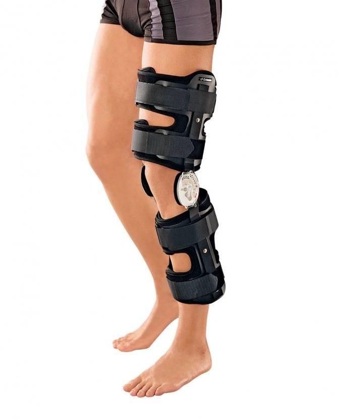 Вальгусная деформация из за артроза коленных суставов