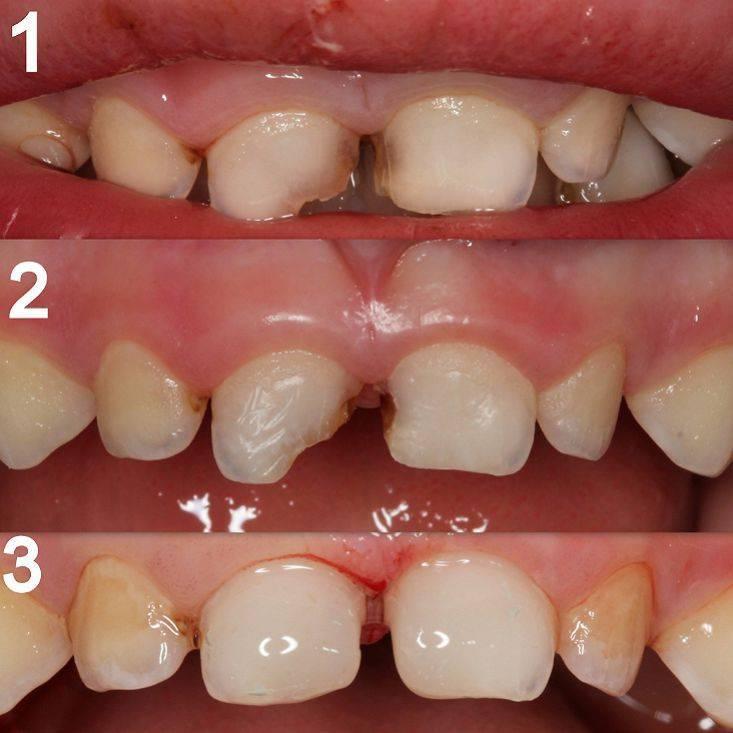Фторирование зубов у детей - с какого возраста и как его делают