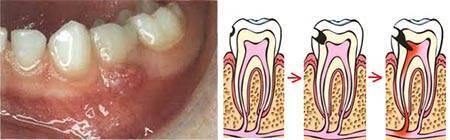 Пульпит молочного зуба у детей: лечение и симптомы пульпита молочных зубов