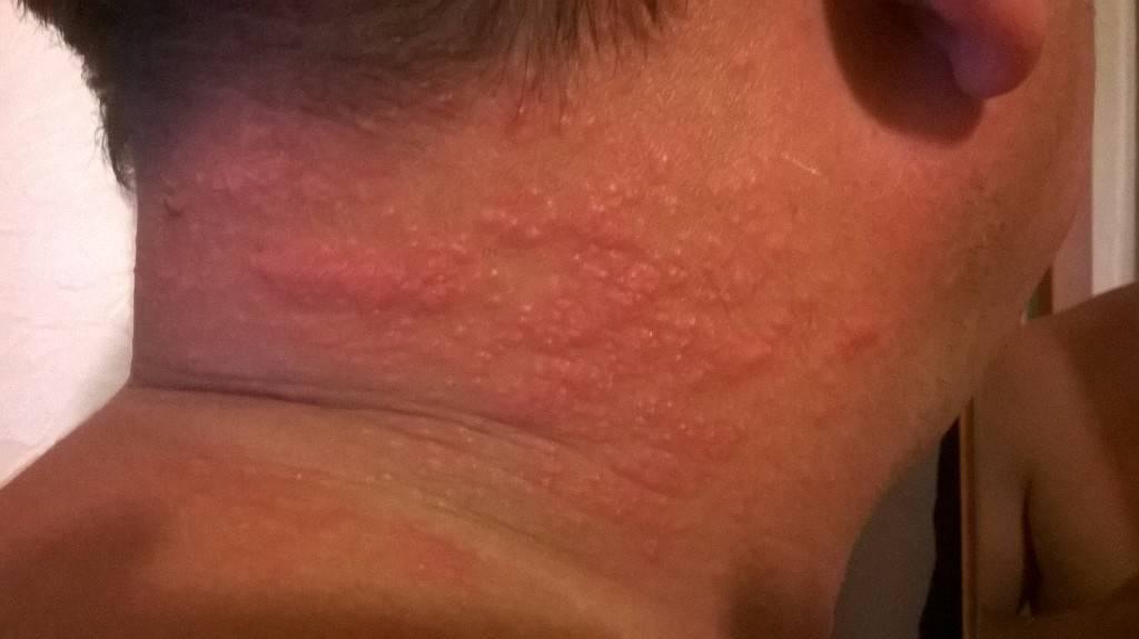 Почему ребенок чешется и как ему помочь? почему у ребенка могут появиться покраснения на коже и зуд по всему телу с сыпью и без, как избавиться от проблемы