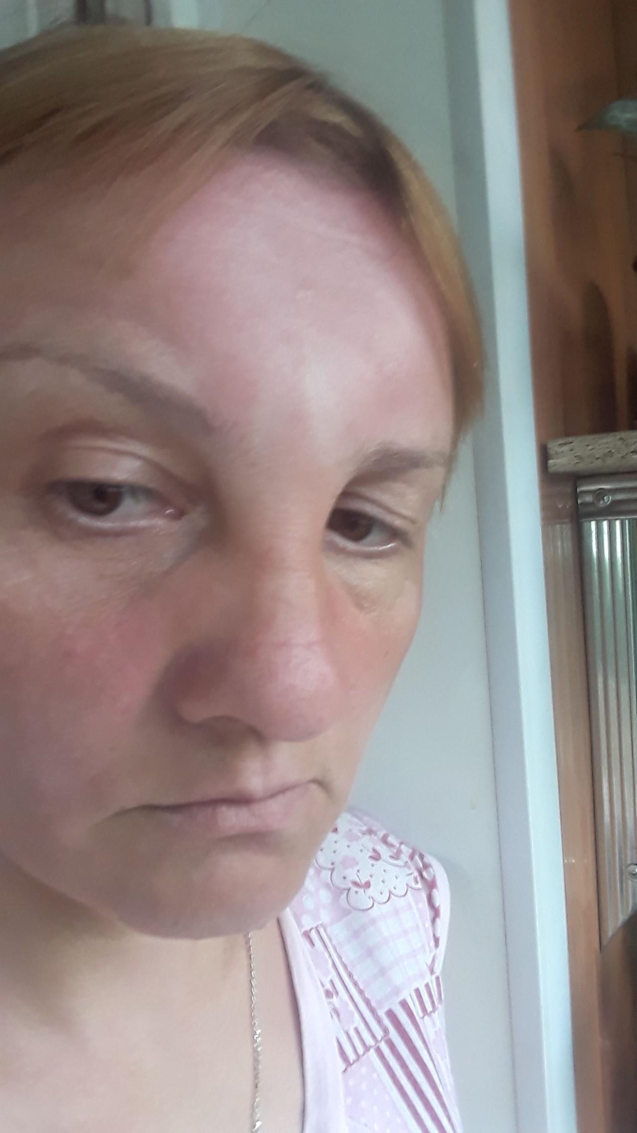 Припухлость на лбу между бровями - заболевание на рак