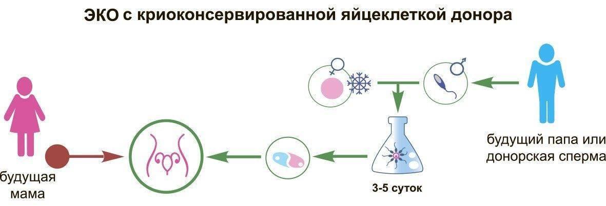 Эко с донорской яйцеклеткой, эко с донорскими ооцитами, с замороженной яйцеклеткой