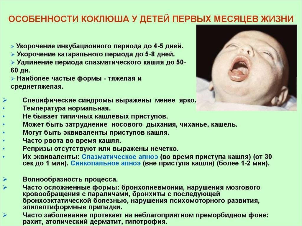 Коклюш у детей: фото симптомов, течение заболевания, народные методы лечения коклюша у детей