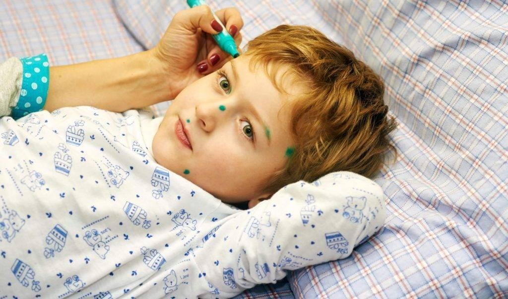 Профилактика ветряной оспы у детей