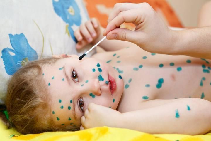 Как быстро вылечить ветрянку у детей в домашних условиях народными и лекарственными средствами?