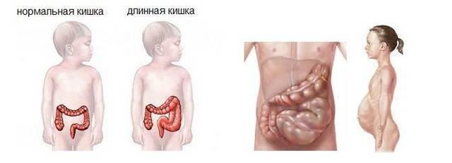 Болезнь гиршпрунга у детей (20 фото): что это такое, симптомы и лечение, клинические рекомендации для новорожденных