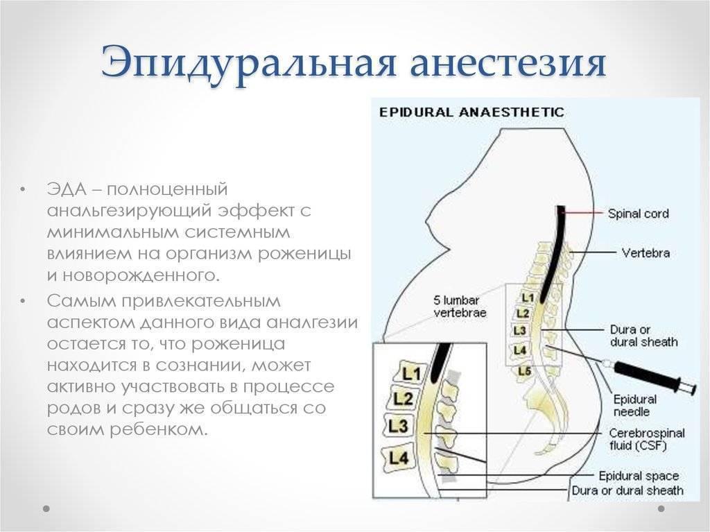 Спинальный наркоз или эпидуральная анестезия что лучше. отличия спинальной и эпидуральной анестезии, а нужен ли общий наркоз? спинномозговая и перидуральная анестезия: главные отличия