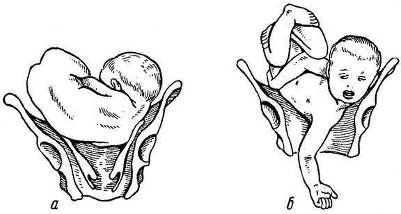 Тайный язык. о чем говорят врачи во время родов?