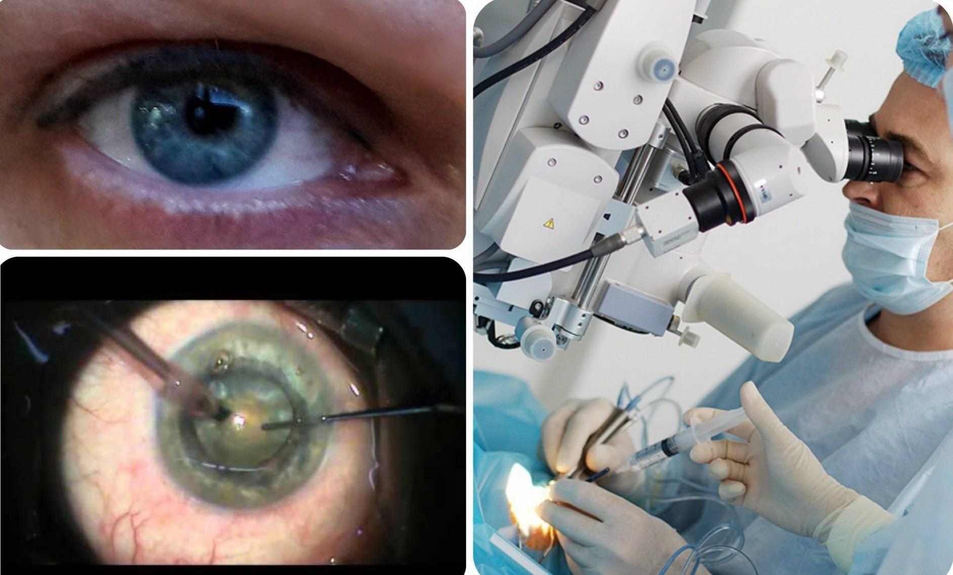 Укрепление склеры глаза | лечение глаз