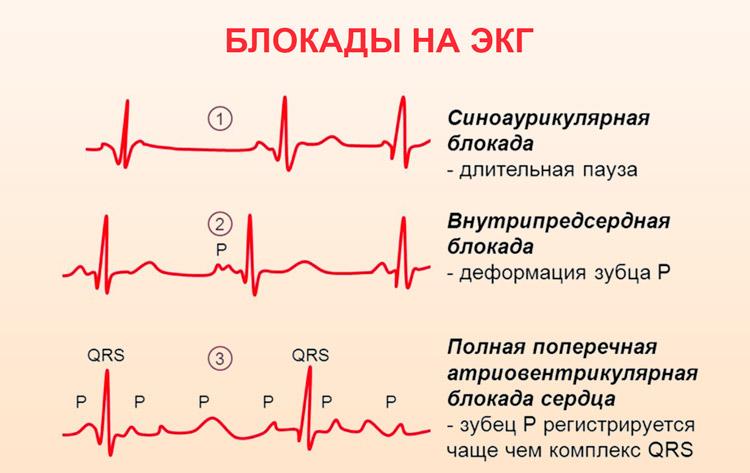 Нарушения внутрижелудочковой проводимости сердца: блокады ножек гиса