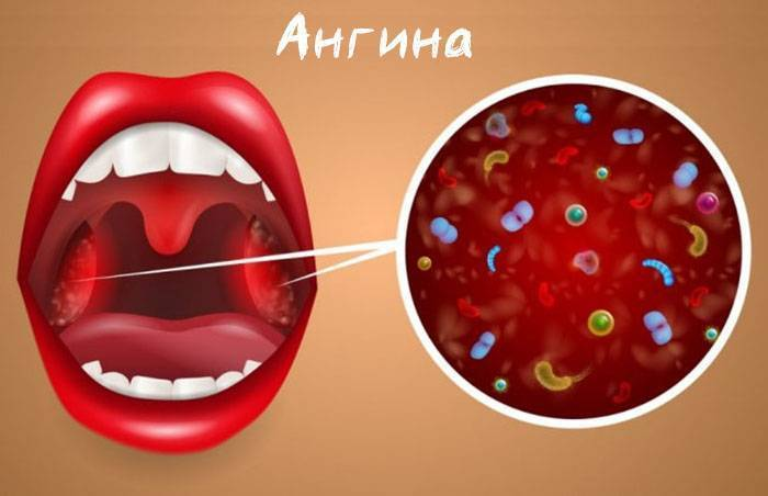 Симптомы и лечение основных заболеваний горла