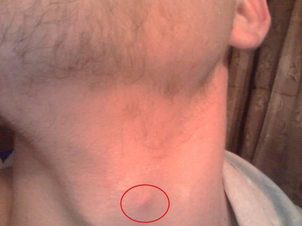 У ребенка на шее шишка под кожей: что это может быть за шарик и как его лечить?