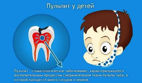 Лечение молочных зубов у детей: нужно ли лечить, этапы лечения
