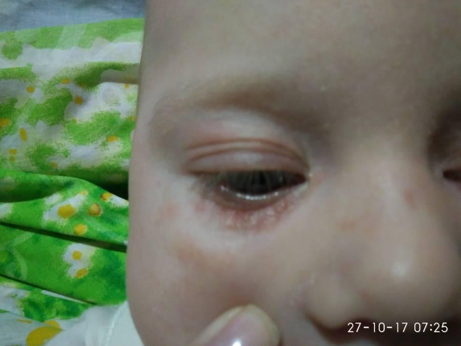 Мелкая сыпь на коже вокруг глаз