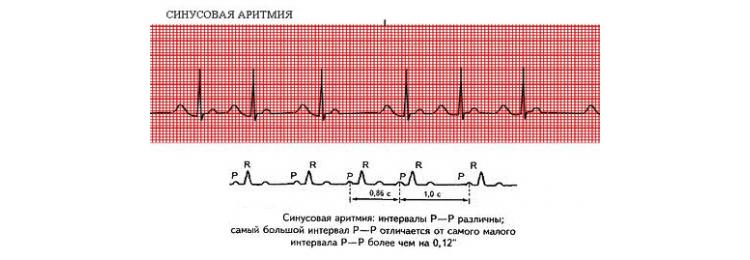 Нарушения сердечного ритма у ребенка, симптомы и лечение