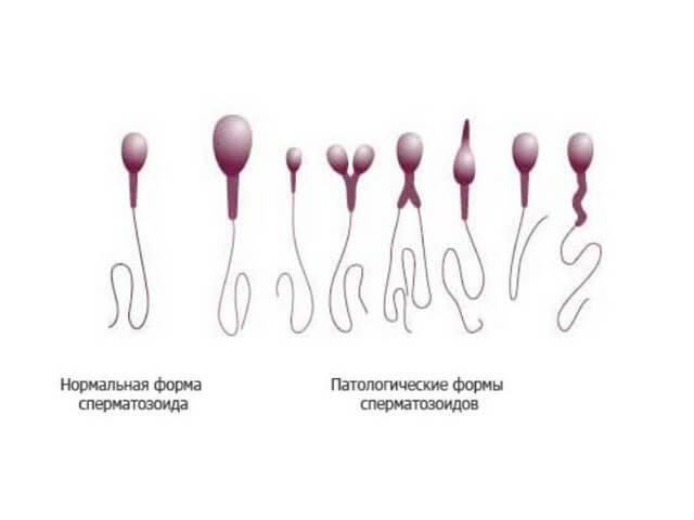 Можно ли забеременеть от предсеменной жидкости и смегмы