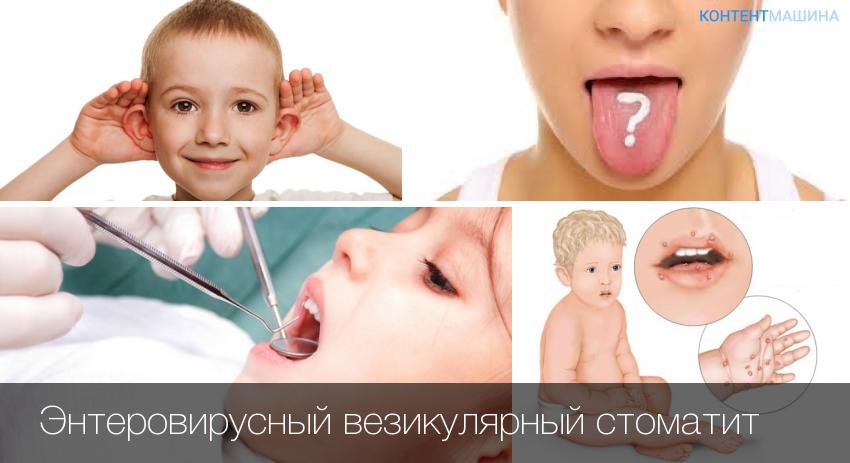 Синдром нога-рука-рот у детей – симптомы инфекции, лечение и профилактика вируса коксаки