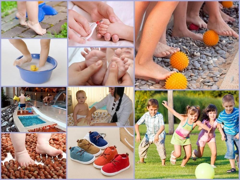 Плоскостопие у детей: признаки, причины и методы лечения